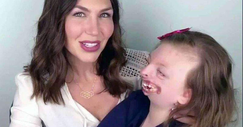 Sophia Weaver, de 10 anos de idade que sofreu bullying por deformidades faciais e apoio inspirado para crianças com deficiência, falece
