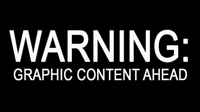 ФОТО: Францияның Ницца қаласында Бастилия күніндегі террористік шабуыл [ЕСКЕРТУ: ГРАФИКА]
